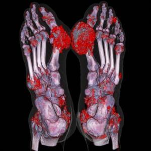 Снимок томографа